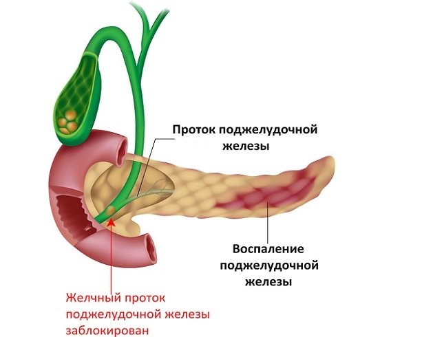 Vocabular postoperatoriu pancreas