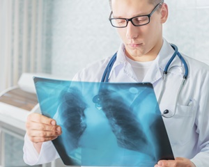 diagnostic de cancer pulmonar în Israel
